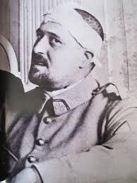 Guillaume Apollinaire blessé le 17 mars 1916